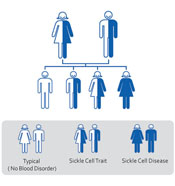 Sickle Cell Inheritance Pattern