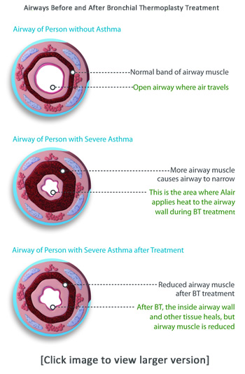 Bronchial thermoplasty - airways before and after