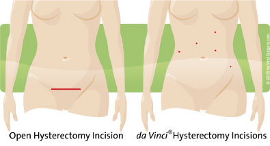 Illustration: hysterectomy incisions